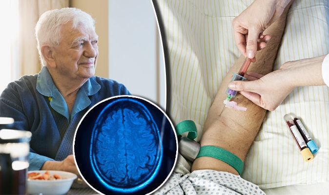 human-study-identifies-biomarker-in-blood-for-alzheimers-disease