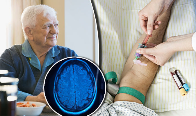 human-study-identifies-biomarker-in-blood-for-alzheimers-disease
