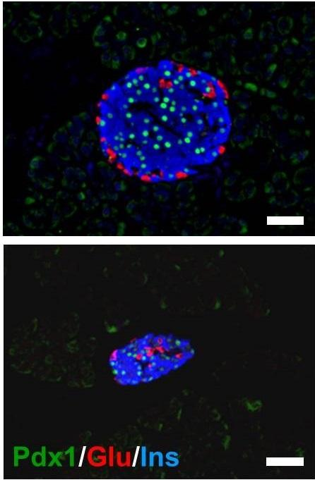 In normal mice (top), the pancreas forms with normal spatial organization as seen by the distinct patterning of different colored cell types. In Pdx1 mutant mice (bottom), however, the pancreas is much smaller and loses its spatial organization. Scale bars = 50 micro meter.  Credit: Kawaguchi Laboratory, CiRA, Kyoto University.