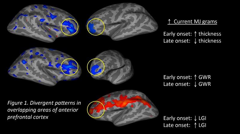 These are divergent patterns in overlapping areas of anterior prefrontal cortex. Credit: Center for BrainHealth.