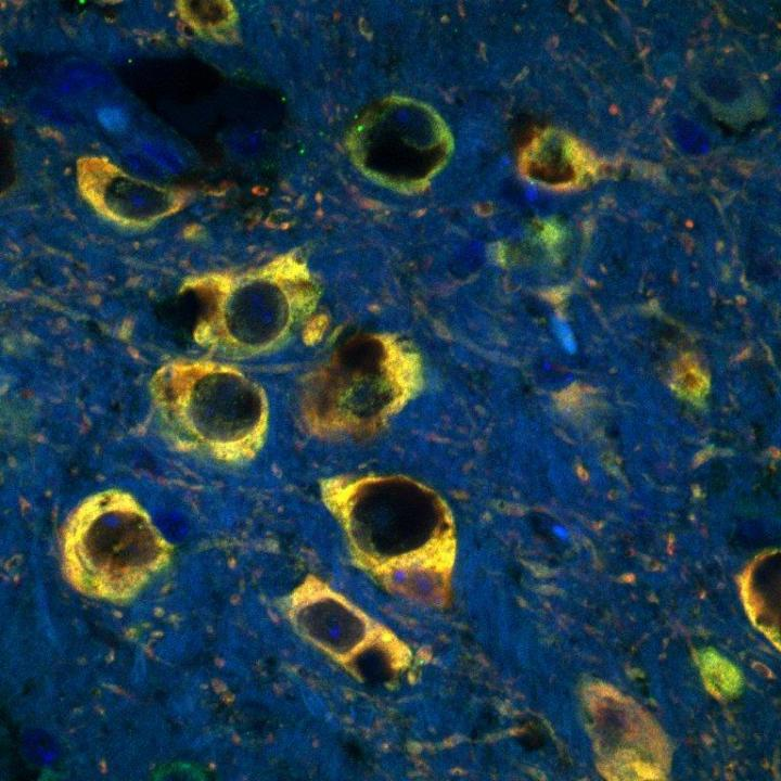 Dopaminergic neurons in the human substantia nigra, the cells preferentially lost in Parkinson's disease. The yellow staining represents iron-dependent staining of the neurons.  Credit: Subramanian Rajagopalan, MSc. Buck Institute for Research on Aging.
