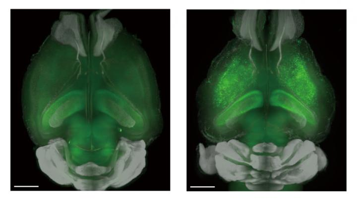 The research group used genetically engineered mice that expressed a green fluorescent protein when neural activity increases to monitor brain activity. (Left) Low-level neural activity during sleep without inhibition of NMDA receptors, a type of ion-channel protein found on the membrane of neurons. (Right) One important discovery was that in contrast to conventional theory, inhibiting NMDA receptors directly evokes neural activity and brings about waking. Copyright: Ueda lab.