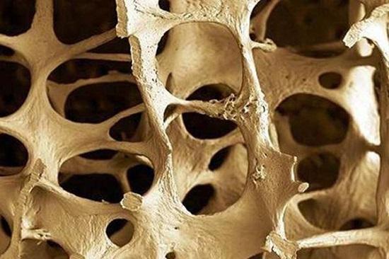 Bone loss.