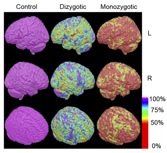 Similarity images of dizygotic and monozygotic pairs compared by control pairs. Average difference in SUV ratio (as percentage difference in control pairs) between members of dizygotic twins and monozygotic twins is displayed pixel by pixel on standard MR brain atlas in color scale. Average difference in SUV ratio between members of control pairs was set to be 100%.  Genetic and Environmental Influences on Regional Brain Uptake of 2-deoxy-2-18F-fluoro-D-glucose: a PET Study in Monozygotic and Dizygotic Twins.  Watanabe et al 2016.