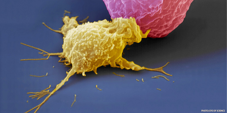 Natural killer cells (yellow) identifies and kills cancer cells (pink) or virus infected cells before they wreak havoc on the organism.   (Photo: eye of science).