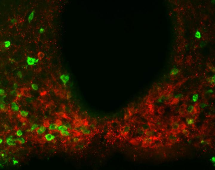 Scientists found evidence of the metabolism-regulating protein amylin, shown in red, present in multiple regions throughout a brain area called the hypothalamus. Experiments suggest amylin produced by hypothalamic neurons helps reduce food consumption together with leptin. Credit: Laboratory of Molecular Genetics at The Rockefeller University/Cell Metabolism.