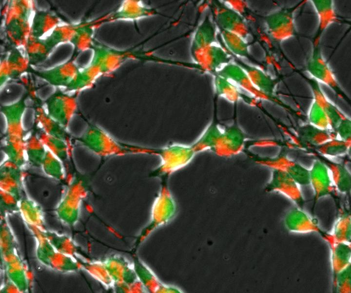 Loss of the DJ1 gene in nerve cells (green) impairs the transport of mitochondria (red) and important metabolic pathways of the cellular respiration. Credit: University of Luxembourg.