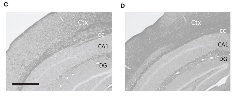 Metabolic assessment of brain glycogen levels. (C,D) Representative PAS-stained sections through the mid-hippocampus after conversion to grayscale. Chronic Pyruvate Supplementation Increases Exploratory Activity and Brain Energy Reserves in Young and Middle-Aged Mice. Tanila et al 2016.