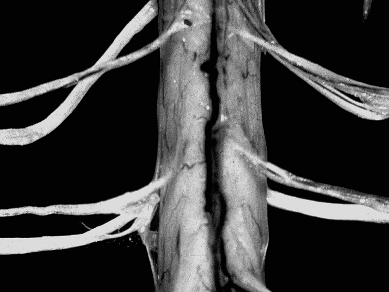 Ventral spinal chord of person with ALS by ML Cohen/CC BY-NC-SA.