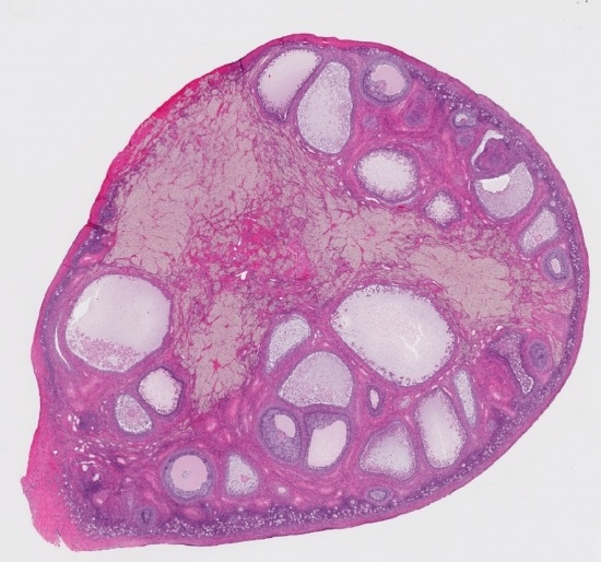 This cross-section of a human ovary shows potential areas for stem cells -which can now be converted to oocytes - even in adult women; Credit: Shutterstock.
