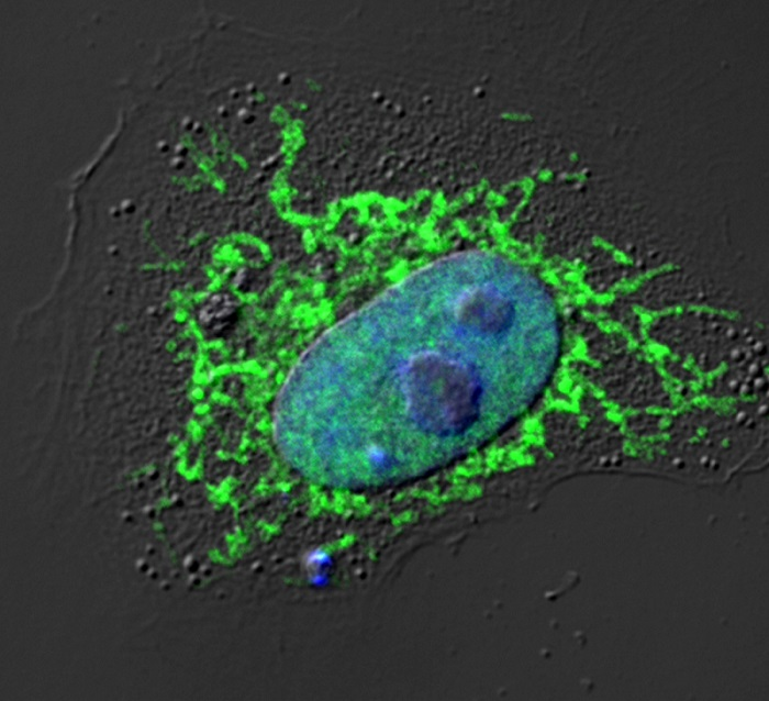 Research from the Chanda lab shows that NLRX1 (green) blocks the immune response to viral DNA.  Credit: Sanford Burnham Prebys Medical Discovery Institute (SBP).