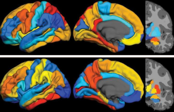 """PET imaging shows that tau (top panel) and β-amyloid (bottom panel) in distinct topographies are strongly correlated in Alzheimer's disease. This material relates to a paper that appeared in the May 11, 2016, issue of Science Translational Medicine, published by AAAS. The paper, by M.R. Brier at Washington University in St. Louis in St. Louis, MO, and colleagues was titled, """"Tau and Aß imaging, CSF measures, and cognition in Alzheimer's disease.  Credit: M.R. Brier et al., Science Translational Medicine (2016)."""