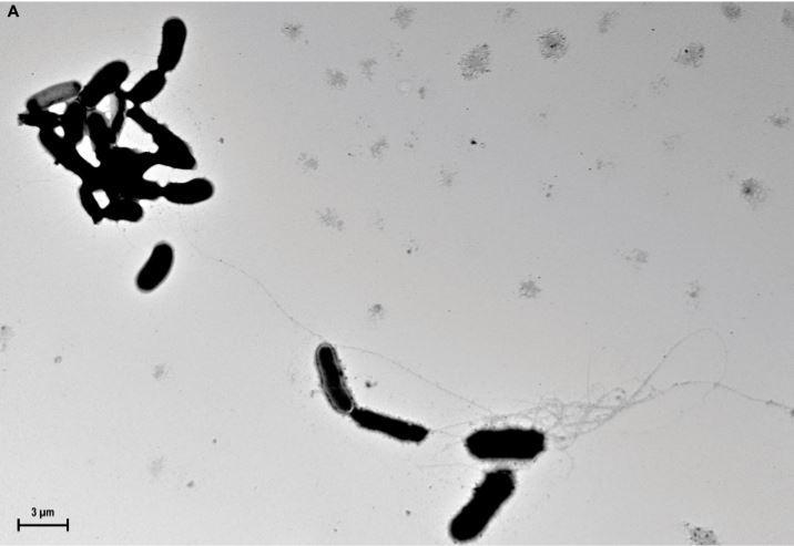 """β-amyloid fibrils propagate from yeast surfaces and capture Candida albicans in culture medium. This material relates to a paper that appeared in the May 25, 2016, issue of Science Translational Medicine, published by AAAS. The paper, by D.K.V. Kumar at Massachusetts General Hospital in Charlestown, Mass., and colleagues was titled, """"Amyloid-ß peptide protects against microbial infection in mouse and worm models of Alzheimer's disease.""""  Credit: D.K.V. Kumar et al. / Science Translational Medicine (2016)."""