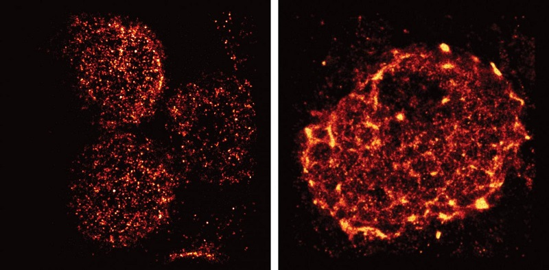 Salk scientists used light-sheet super-resolution imaging to capture the rearrangement of T-cell receptors from nanometer-scale protein islands (left) to micrometer-scale microclusters (right) after T-cell activation in mouse lymph nodes.  Credit: Salk Institute.
