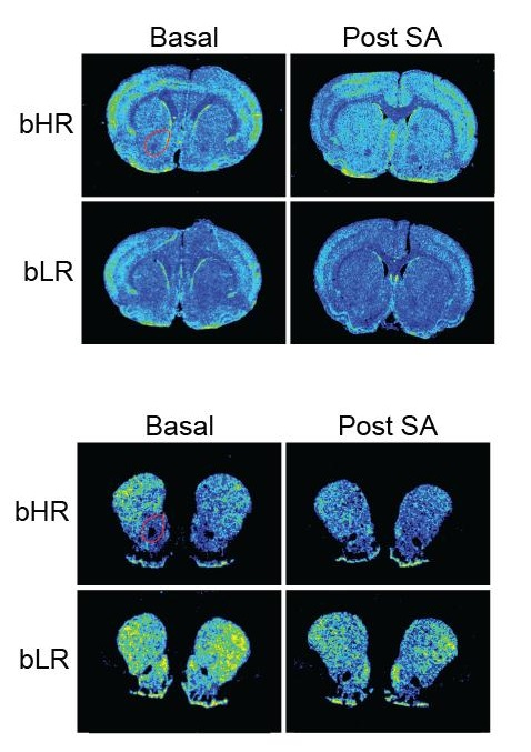 In these images of rat brains, differences in gene expression of genes for fibroblast growth factor 2 (FGF2, top set) and dopamine 2 receptor (D2, bottom sett) can be seen in rats of two breeds before (left) and after (right) cocaine exposure. The addiction-prone bHR rats differed significantly in several ways from the timid bLR rats.  Credit: Flagel Lab, University of Michigan.