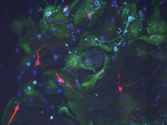 ft Cerebrospinal fluid signals control the behavior of stem cells in the brain  - neuroinnovations