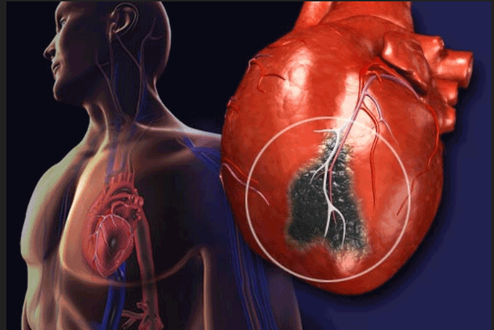 After the heart attack - Injectable gels could prevent future heart failure - healthinnovations