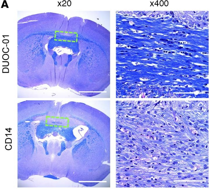 LFB-PAS staining analysis of effect of DUOC-01 treatment on remyelination following cessation of cuprizone (CPZ) treatment.  LFB-PAS staining 1 week after intracranial injection of CD14+ monocytes (lower panels), and DUOC-1 cells (middle panels), in CPZ-fed NSG mice. Midline corpus callosum (CC) area is shown by dotted green line. Scale bars: 2,000 μm (×20 magnification) and 100 μm (×400 magnification).  A cord blood monocyte–derived cell therapy product accelerates brain remyelination.  Balber et al 2016.
