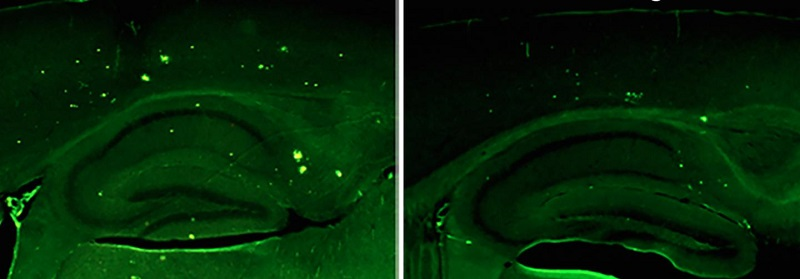 In a mouse model of Alzheimer's disease, Salk Institute researchers show that raising levels of neuregulin-1 (right) lowers a marker of disease pathology in a part of the brain that controls memory compared with controls (left).  Credit: Salk Institute.
