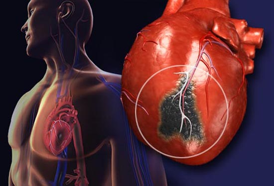 ft After the heart attack - Injectable gels could prevent future heart failure - healthinnovations