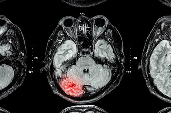 「TBI alzheimer」の画像検索結果