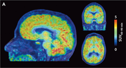 ft New PET scan tracer allows first imaging of the epigenetics of the human brain - neuroinnovations