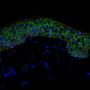 ft Two proteins safeguard skin stem cells - healthinnovations