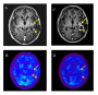 Recurrent glioblastoma multiforme (GBM) in a 55-year-old man before and after hypofractionated stereotactic radiotherapy by intensity modulated radiation therapy (HS-IMRT). Before HS-IMRT, two enhanced lesions (long and short arrow) were demonstrated in the left temporal lobe on T1-weighted magnetic resonance imaging (A). 11C-methionine positron emission tomography (MET-PET) demonstrated a MET high-uptake on the region of short arrow, which was defined as the Gross Tumor Volume (red line) (B). 5 months after HS-IMRT, there was no tumor recurrence on the lesion (long arrow, C &D). The enhanced lesion (short arrow) was increased in size (C), although MET uptake decreased relative to normal tissue, which suggested a necrotic change in the irradiated region (D). The patient had no neurologic deficits or quality of life issues. KPS was 90%.   Re-irradiation of recurrent glioblastoma multiforme using 11C-methionine PET/CT/MRI image fusion for hypofractionated stereotactic radiotherapy by intensity modulated radiation therapy.  Iwama et al 2014.
