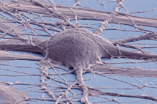 This is a colorized scanning electron micrograph of a human induced pluripotent stem cell-derived neuron in culture.  Credit: Thomas Deerinck, National Center for Microscopy and Imaging Research, UC San Diego.