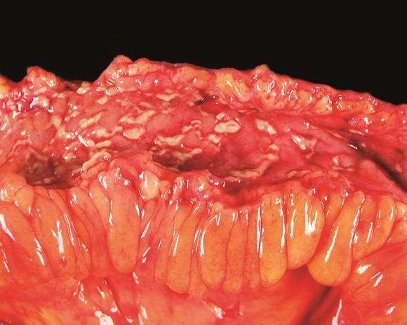 Source: ISM / Science Photo Library.  Crohn's disease can affect the entire gastrointestinal tract, causing ulcers that affect all layers of the intestinal wall.