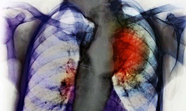 sleep-apnea-may-make-lung-cancer-more-deadly-healthinnovations