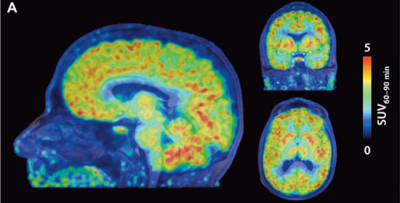 ft-new-pet-scan-tracer-allows-first-imaging-of-the-epigenetics-of-the-human-brain-neuroinnovations