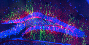 ft-research-shows-new-neurons-created-through-exercise-dont-cause-you-to-forget-old-memories-neuroinnovations