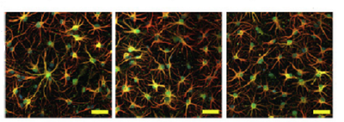 ft-brain-astrocytes-linked-to-alzheimer_s-disease-neuroinnovations
