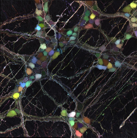 ft Novel viral vectors deliver useful cargo to neurons throughout the brain and body - neuroinnovations