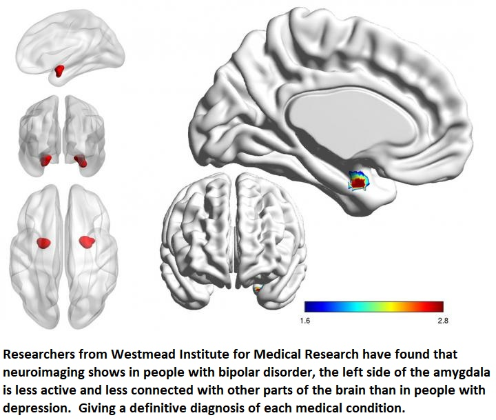 BRAIN SCAN DIAGNOSIS HEALTHINNOVATIONS TWITTER