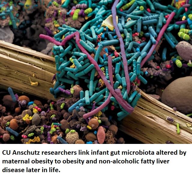 gut microbiome microbiota healthinnovations health science pharma