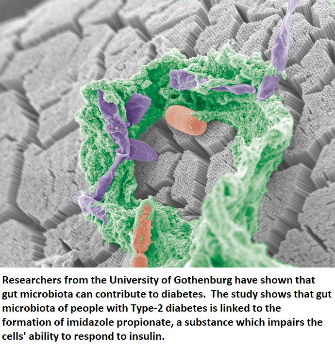 diabetes healthinnovations twitter science microbiota health