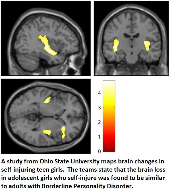 neuroscience neuroinnovations healthinnovations health science biology medical