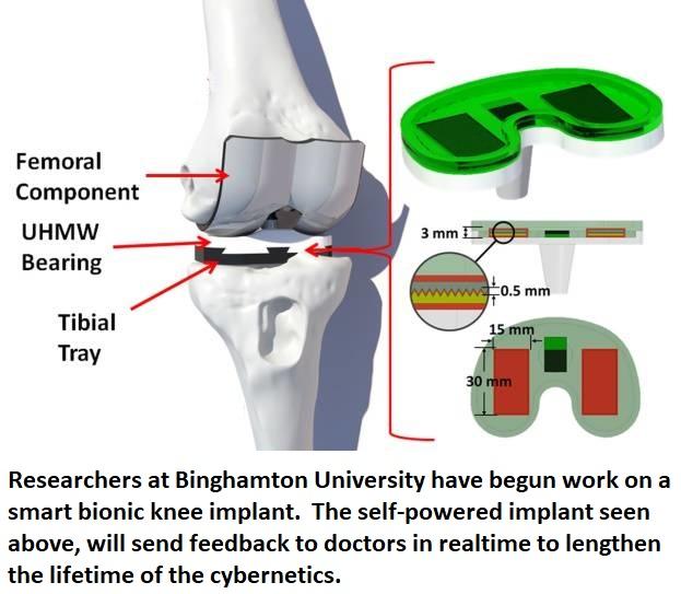 smart knee bionic implant healthinnovations health science