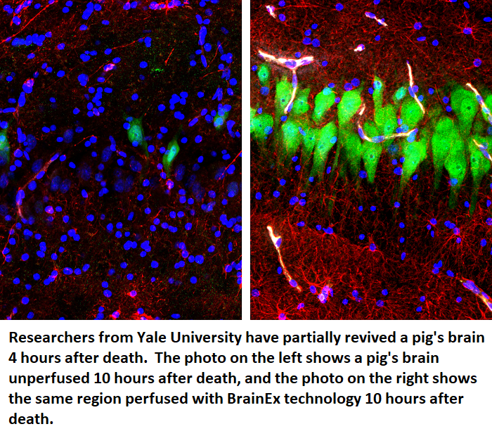 pig brain revived reanimated healthinnovations health science biology